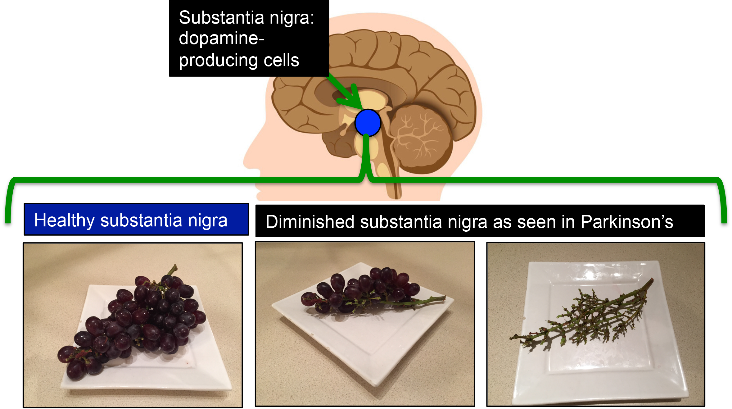 complementary and alternative medicine cam in parkinson s a bunch of grapes vs the substantia nigra a small region of the mid brain called the substantia nigra is responsible for making the all essential