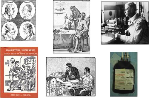 transfusion-history-2
